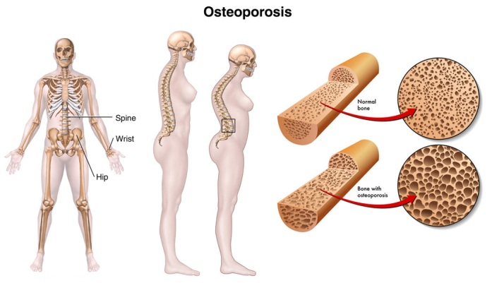 An image of osteoporotic changes to a skeleton